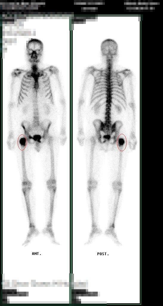 張姓男子全身正反面X光照出右大腿骨和髖臼病變。記者簡慧珍/攝影