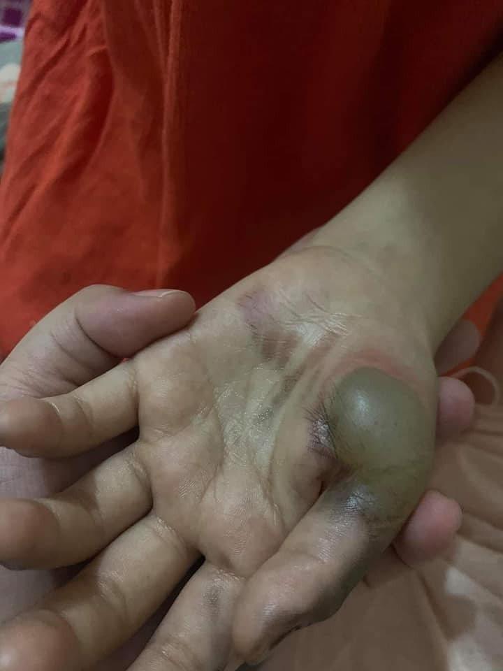 菲律賓日前發生一名2歲男童把金屬湯匙插進延長線插座恐後、觸電身亡事件,且當地一名...