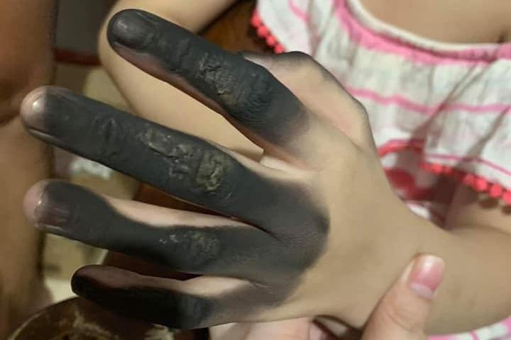 驚悚!女童觸電手指全燒黑 讓家中寶貝遠離插座黑洞危機