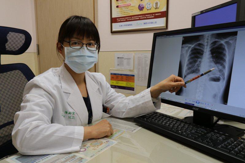 亞洲大學附屬醫院胸腔內科醫師陳鈴宜指出,最近分別有兩名婦人因肩頸疼痛,合併上肢麻痺,後檢經檢查發現胸部影像異常,並確診為肺腺癌合併骨轉移,由於兩人均無抽菸、家族史,兩患者聽到罹癌噩耗均錯愕不已。圖/亞洲大學附屬醫院提供