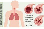 西醫治療氣喘/緩解型藥物救急使用 控制型藥物才能改善發炎