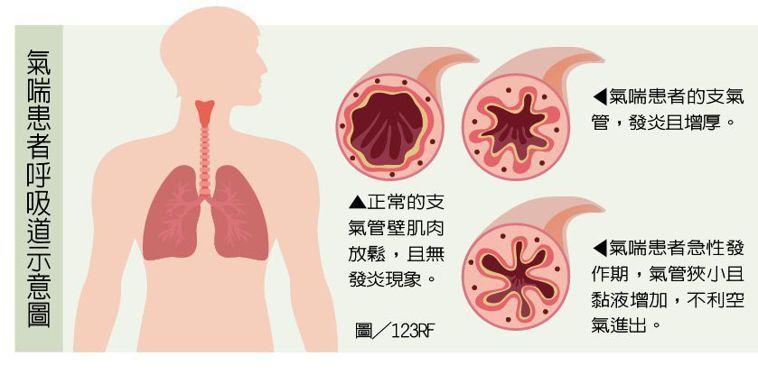 氣喘患者呼吸道示意圖 圖/123RF 製表/元氣周報