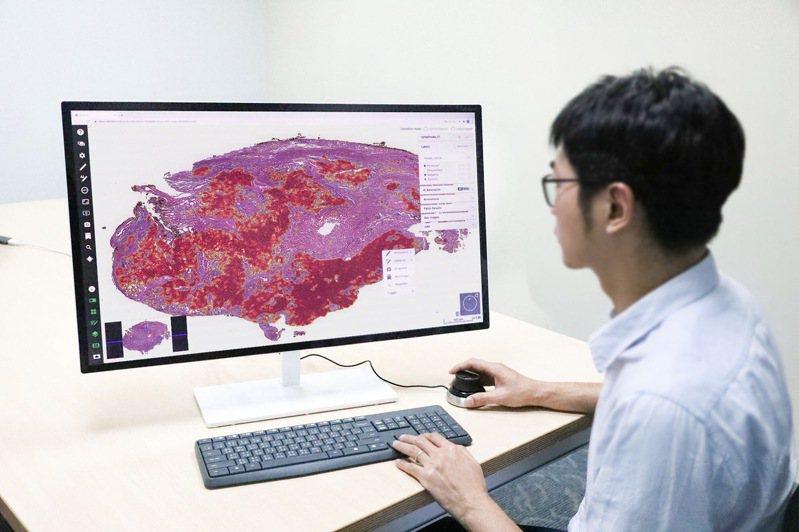 台北醫學大學與雲象科技合作推出肺部腫瘤全玻片病理影像辨識系統,協助病理科醫師診斷肺癌。圖/台北醫學大學提供