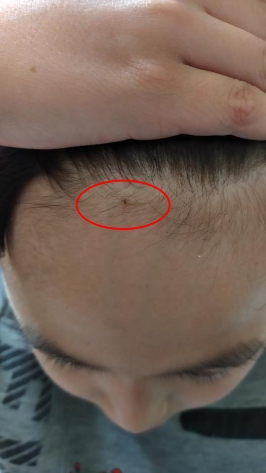 一名網友便說明今日兒子放學回家時,告訴他被同學用鉛筆刺傷額頭。 圖/爆怨公社