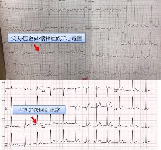 上圖為沃夫-巴金森-懷特症候群之心電圖,下圖為經手術後恢復正常心律之心電圖。圖/...