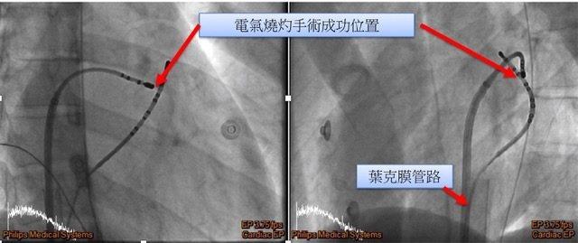 新竹台大分院採用傳統電燒方式以根除病人之沃夫-巴金森-懷特症候群,上方紅色箭頭為電氣燒灼手術成功位置處,下方紅色箭頭所指處為葉克膜管路。圖/新竹台大分院提供