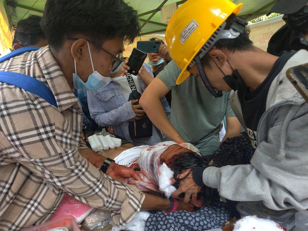 一名示威者在鎮壓行動中受傷。(歐新社)