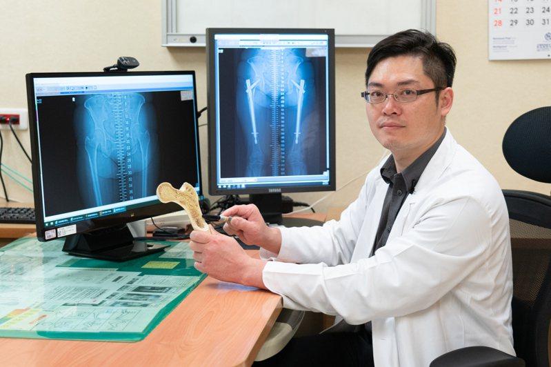 長期使用雙磷酸鹽類藥物治骨質疏鬆症,小心非典型大腿骨折,嘉義長庚關節重建科主任黃贊文說明。圖/嘉義長庚提供