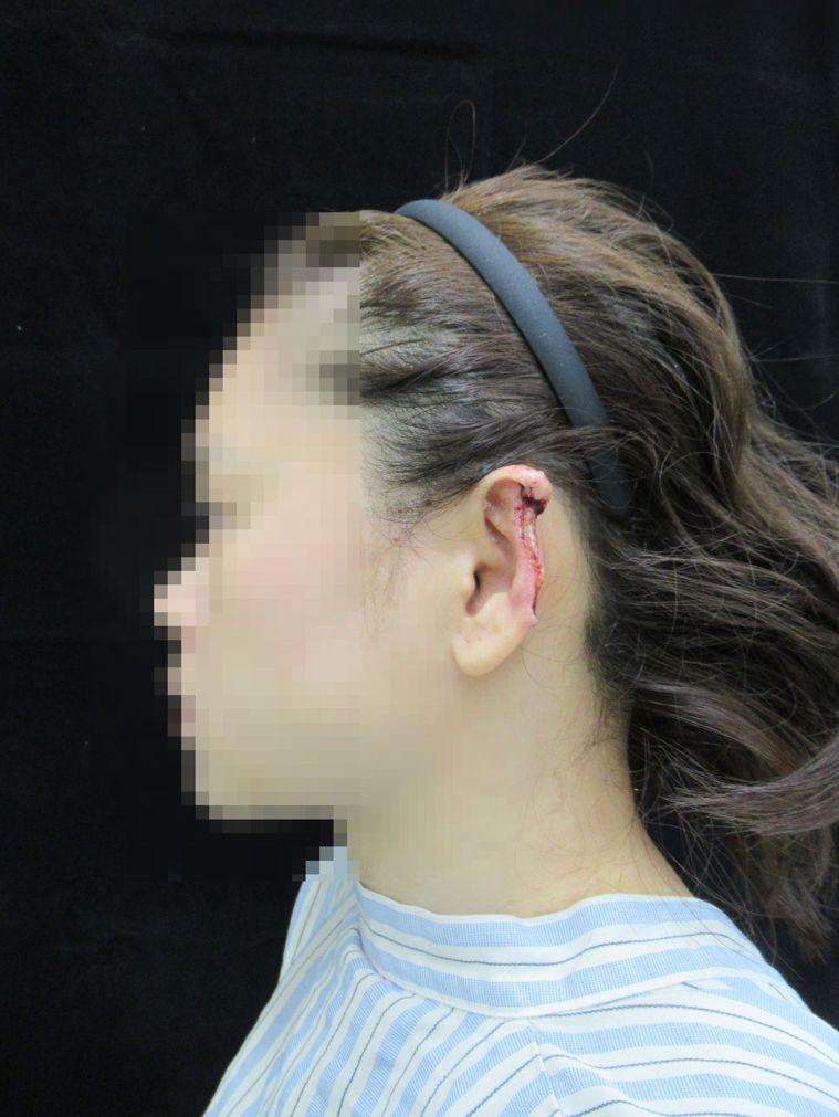 林姓女子左耳被咬掉前的受傷情形。圖/彰化醫院提供