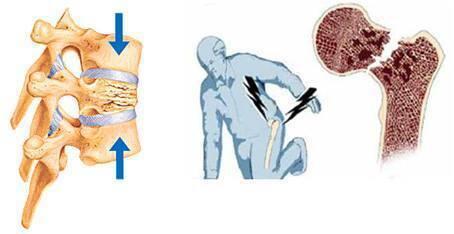 預防跌倒可以減少骨折的發生率  圖/探路客資料照片