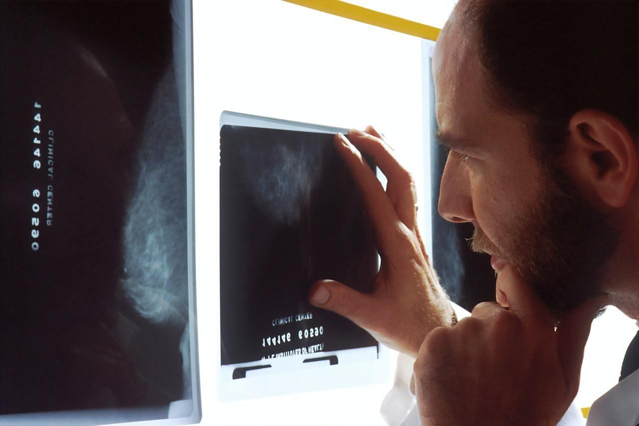 有骨質疏鬆的風險時,即應盡早開始治療。也就是說,骨質缺乏及骨質疏鬆的未發生骨折的...