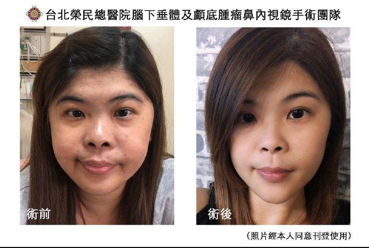 翁小姐接受鼻內視鏡手術前(左圖),術後(右圖)體重臉型恢復以往樣貌。圖/北榮提供
