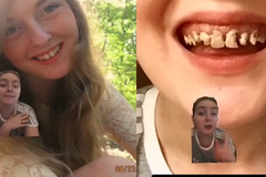 少女「抽菸加一天一罐汽水」牙齒發黑爛光 網友嚇:該刷牙了