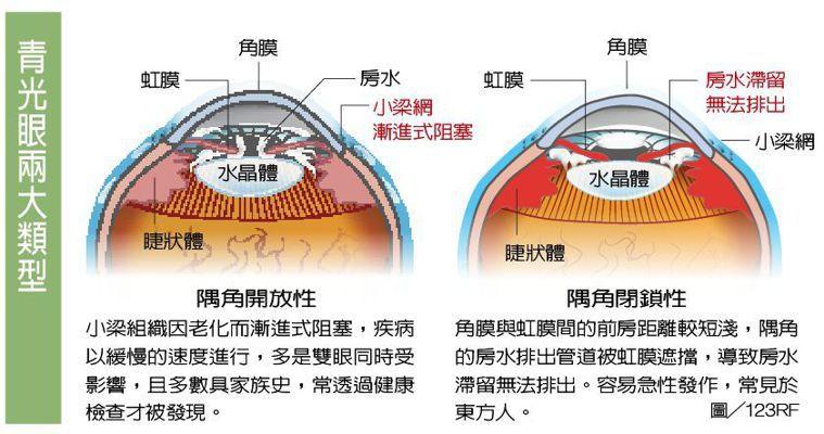 青光眼兩大類型 圖/123RF 製表/元氣周報