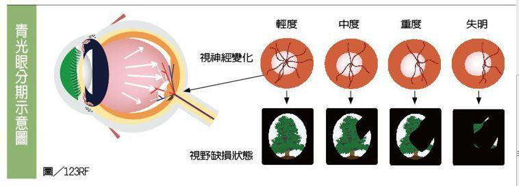 青光眼分期示意圖 圖/123RF 製表/元氣周報