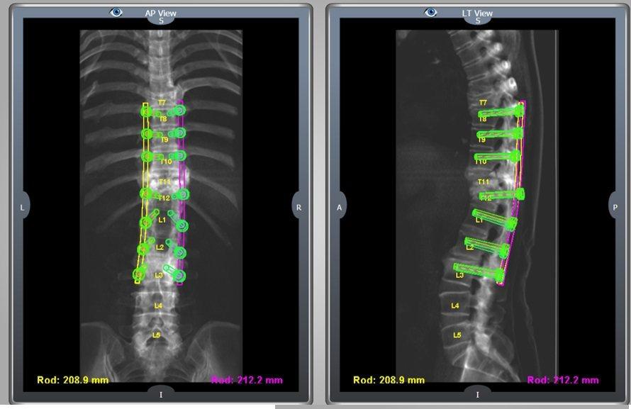 雷納生脊椎機械手臂大幅增加鋼釘植入精準度,減少神經傷害風險。 光田綜合醫院/提供...