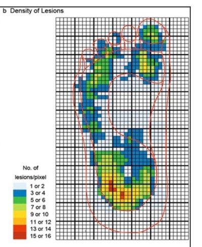 台灣黑色素瘤好發於足部,建議民眾使用「惡性黑色素瘤ABCDE自我檢查指標」。圖/...