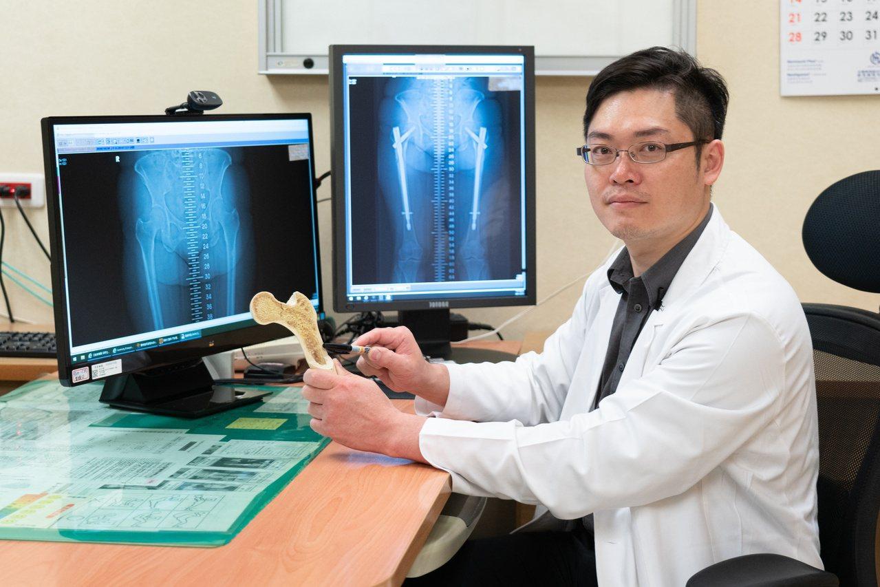 長期使用雙磷酸鹽類藥物治骨質疏鬆症,要小心可能出現非典型大腿骨折。圖為嘉義長庚關...