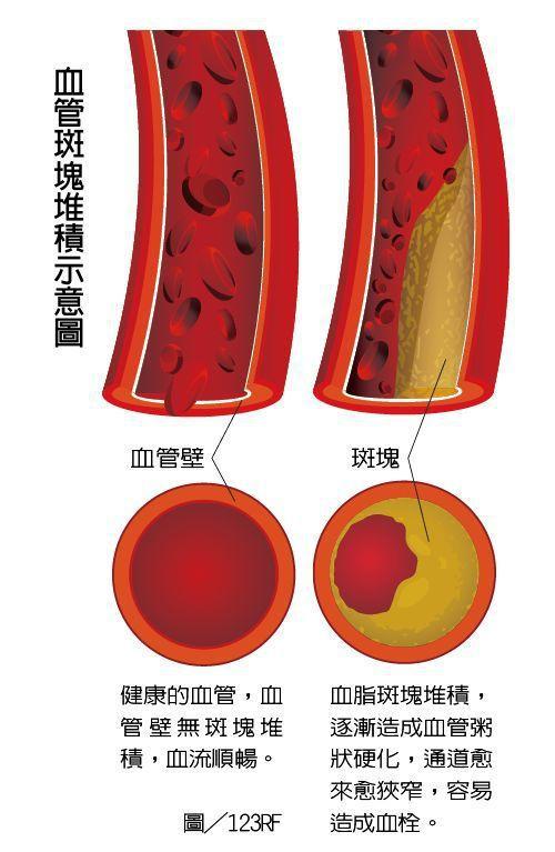 血管斑塊堆積示意圖 製表/元氣周報 圖╱123RF