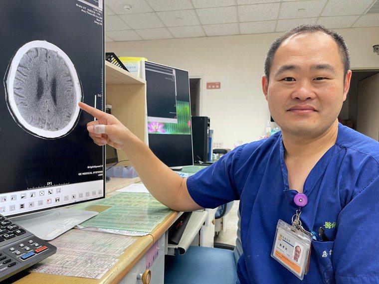 主治醫師劉孝侃說,頭部受傷要儘速就醫,讓醫師專業評估病況。圖/劉孝侃提供