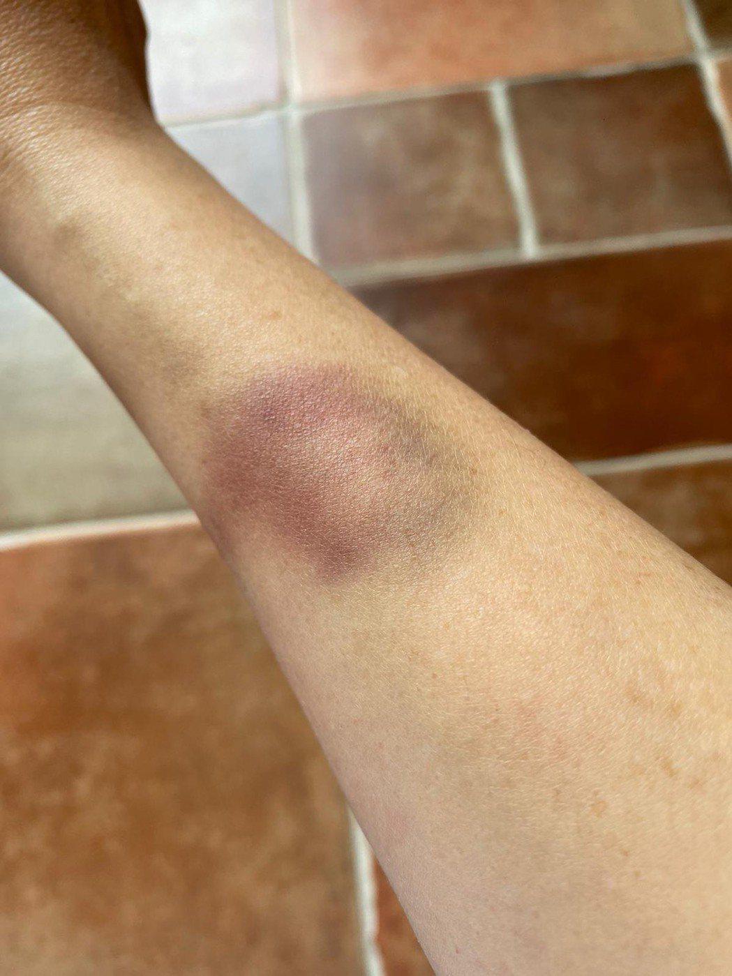 王彩樺因手掛著厚重皮箱,拍完後手臂嚴重瘀青。圖/民視提供