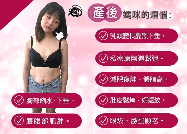 圖:產後媽咪的各種煩惱,臉部、胸部、肚子、私密處從上鬆到下產,前產後大不同。(渾然天成整形外科提供)