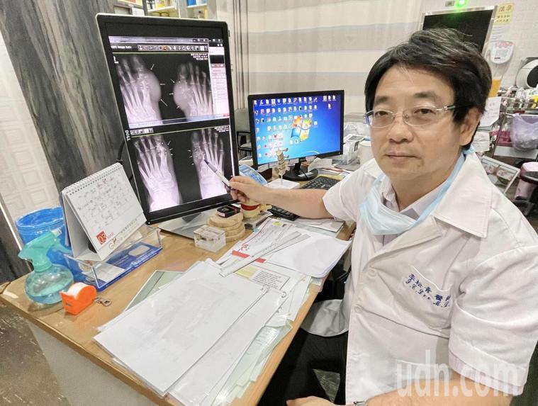 活力得松青診所醫師李松青表示,患者若積極接受治療,脫離痛風關節炎夢魘並非難事。記...