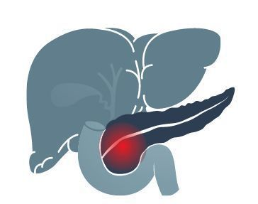 胰臟癌又稱為沉默的癌症,不到五分之一的病患能被早期診斷。圖/123RF
