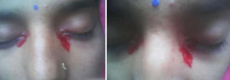 女子流出血色眼淚。圖擷自BMJ