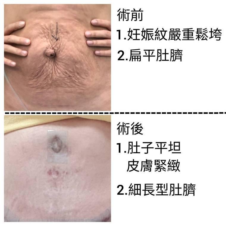 腹部拉皮手術是在肚臍下方增加一道刀口,延伸到恥骨上方,再往左右延伸往外到腹股溝之...