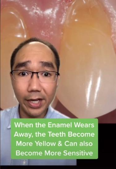 牙醫曝牙齒越刷越黃的真相。圖/取自tiktok@doctortristanpeh