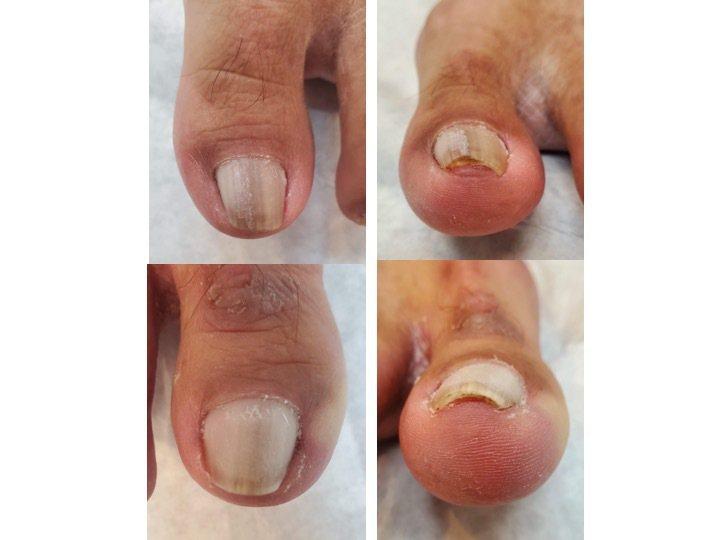 一名50歲男性修剪腳趾甲方式不當,產生卷甲合併甲溝炎的症狀,出現疼痛後修剪指甲,...