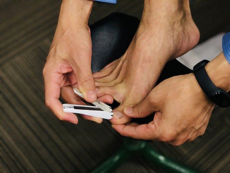 指甲修剪過短,小心發生凍甲。示意圖/記者黃惠群攝影