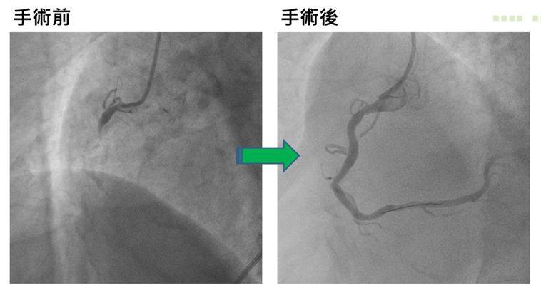 亞洲大學附屬醫院心臟檢查室主任潘泓智表示,門診因心血管疾病就醫的患者也增加約1成...