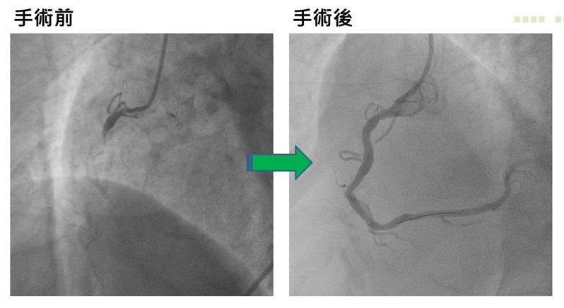 亞洲大學附屬醫院心臟檢查室主任潘泓智表示,門診因心血管疾病就醫的患者也增加約1成。圖/亞洲大學附屬醫院提供