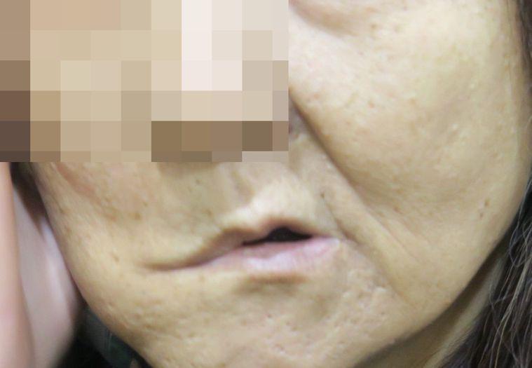 張姓婦女因錯過兩年治療期,右臉顏面神經壞死被切除,右臉將永遠失去表情。圖/彰化醫...