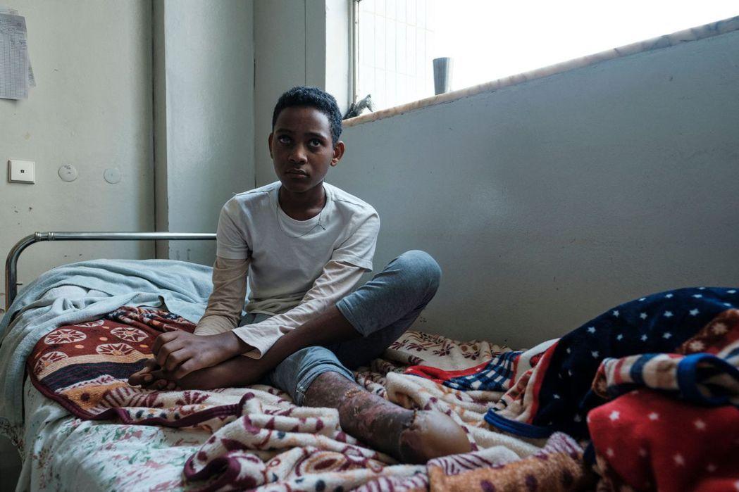 圖為一名在各軍隊戰爭中受傷的13歲男孩。  圖/法新社