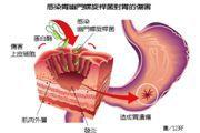 發現幽門桿菌到確診約3.4年 胃癌患者多數有2症狀