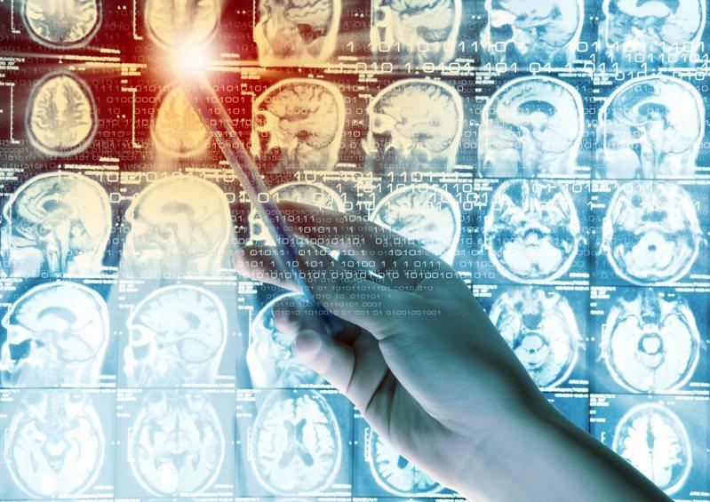 最新一劑腦癌疫苗已通過第一階段人體試驗,該疫苗可望提升患者的免疫系統以對抗腦部腫瘤。圖/取自:ingimage