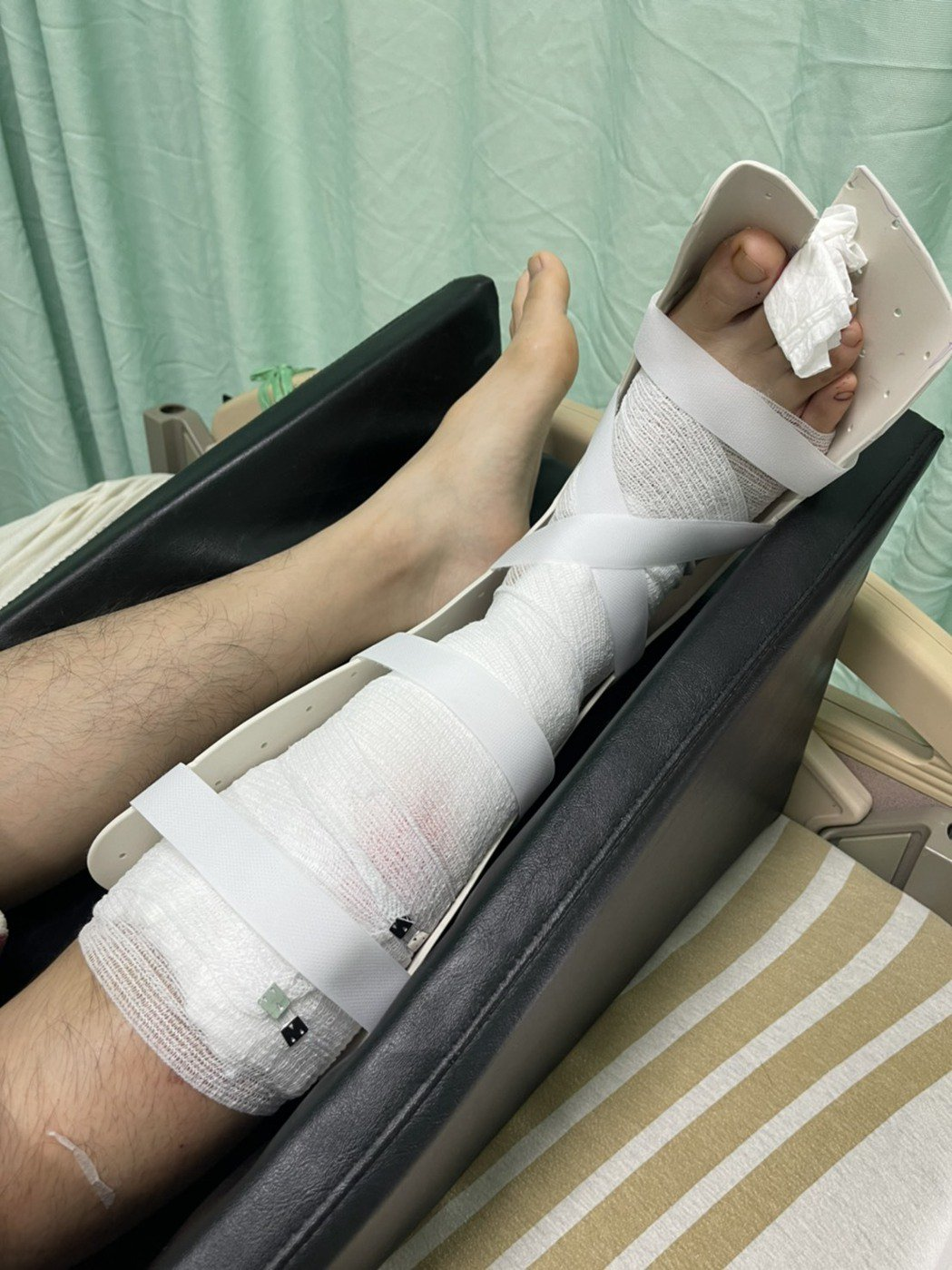 街舞男團B.T.O.D成員Kenny騎車自摔,造成右小腿腓骨骨折。圖/寬寬整合行...