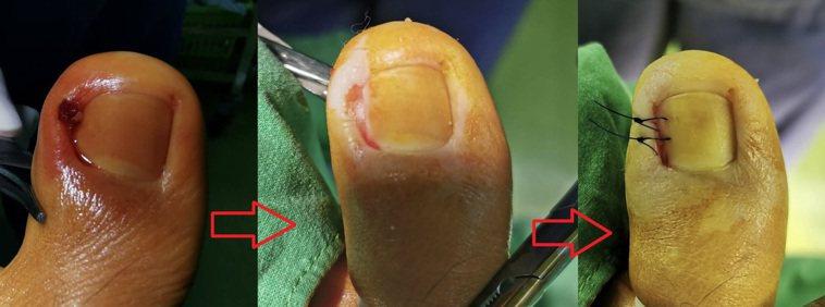 甲床重建術傷口小、復原快,傷口好照護又可避免復發。記者王昭月/翻攝
