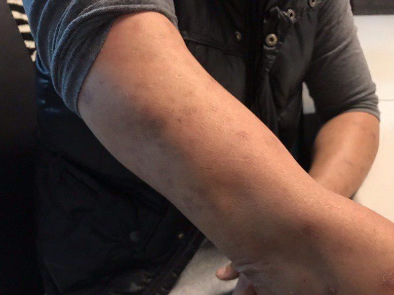 40歲的阿雄,是台灣第一批愛滋感染者。採訪當天,阿雄摸著手上的皮疹疤痕,笑笑地說「很多人看到我的皮膚還是會害怕。」記者馮靖惠/攝影