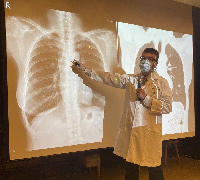 奇美醫院胸腔外科醫師蘇英傑今天報告一個一口氣長出10顆原發性肺癌的罕見病例。記者...