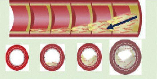 冠狀動脈粥狀硬化過程。圖/北榮提供