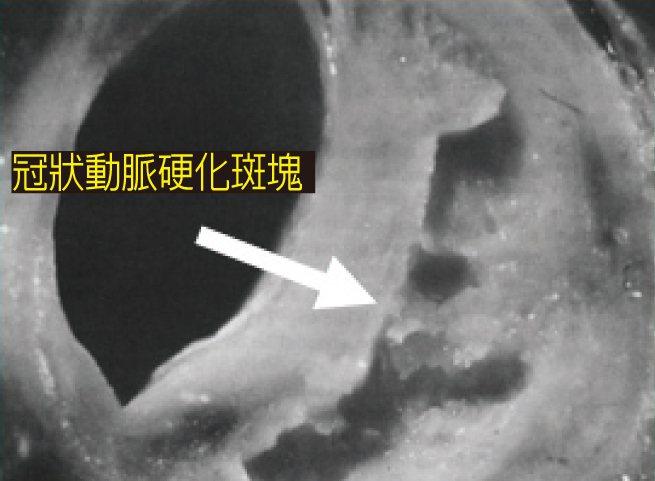 體內冠狀動脈粥狀硬化病灶。圖/北榮提供