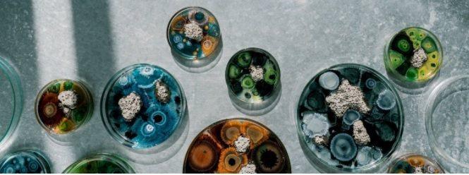 「The New Normal 氣味培養皿」在嘖嘖募資平台上架,推出早鳥優惠。 ...