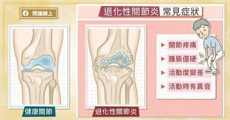 從患者走進診間的步態,膝蓋變形的狀況,大概可以推測退化性關節炎的嚴重程度。 圖/...