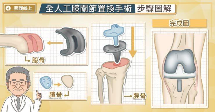 人工膝關節有三個主要結構,分別植入在股骨、脛骨、髕骨。 圖/照護線上