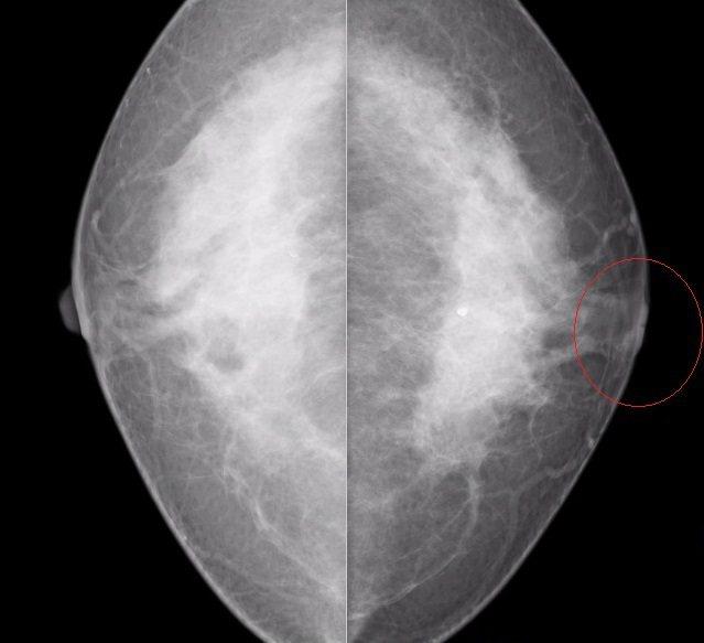 賴姓婦女的左側乳頭凹陷(圖片右邊),紅色框線處是原位癌,另一側乳房正常。圖/彰化...