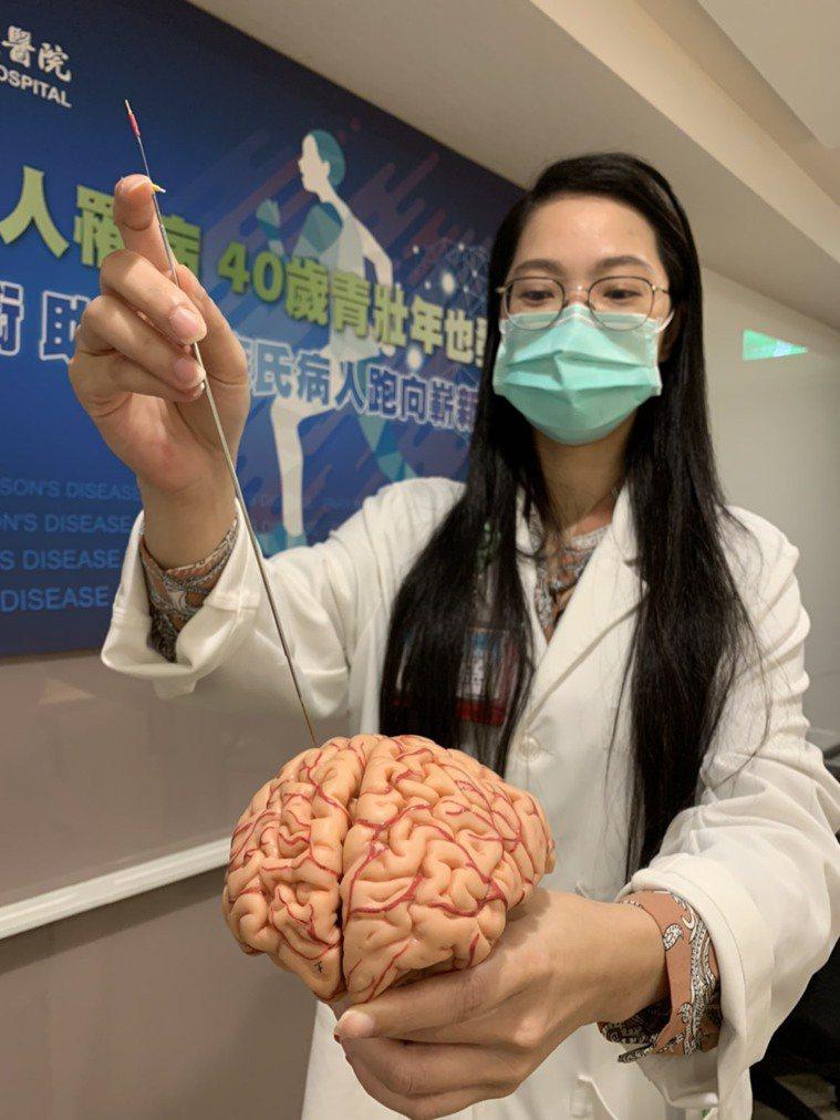 台北醫學大學附設醫院兒童神經外科主任暨神經外科陳淑美指出,並非所有帕金森氏病的病...